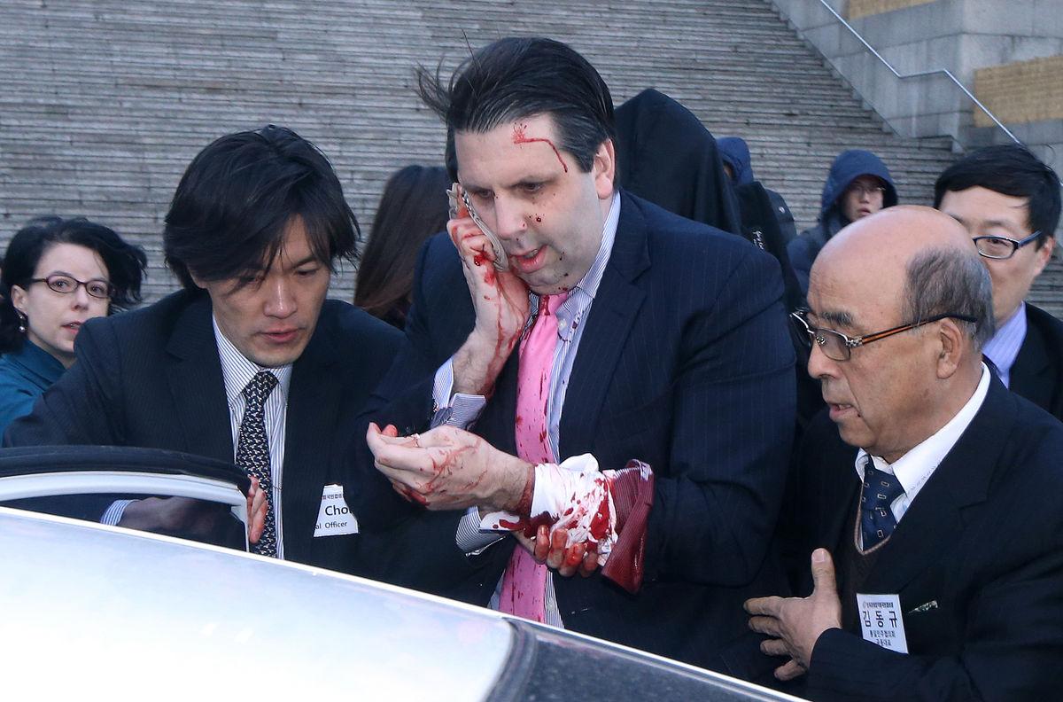 U.S. Ambassador to S. Korea Hospitalized After Attack in Seoul